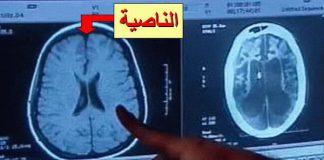 Fungsi Otak Manusia